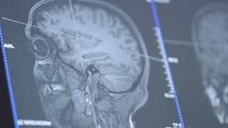 Que se passe-t-il dans le cerveau d'un joueur de poker?